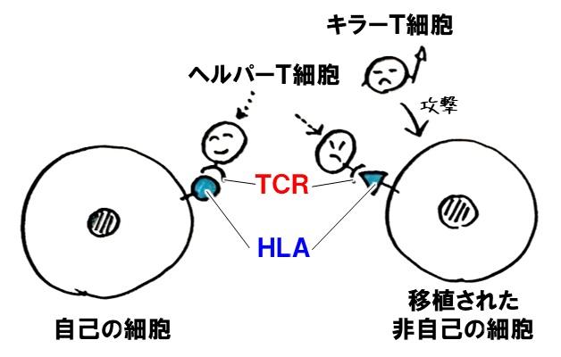 拒絶反応 HLA TCR